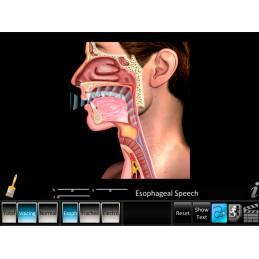 Laryngectomy Computer App Esophageal Speech