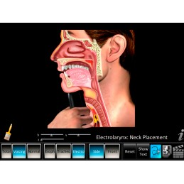 Laryngectomy Computer App Electrolarynx Neck Placement