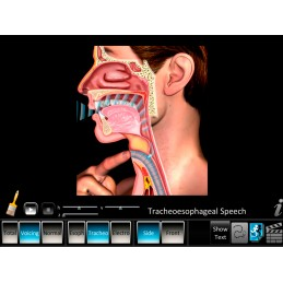 Laryngectomy Computer App Tracheoesophageal Speech Animation