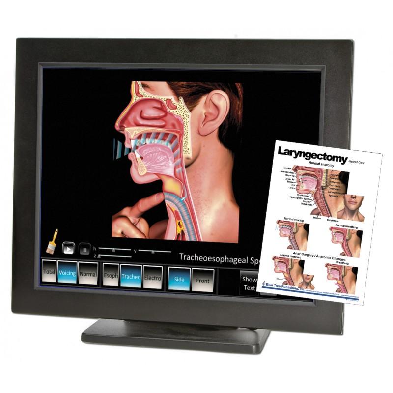 Laryngectomy Computer App Chart Set