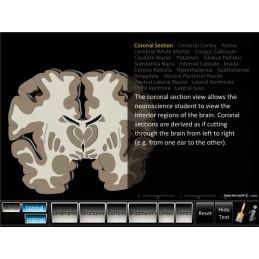 Brain Computer App Flip Charts Tablet Set - Cerebrum ID