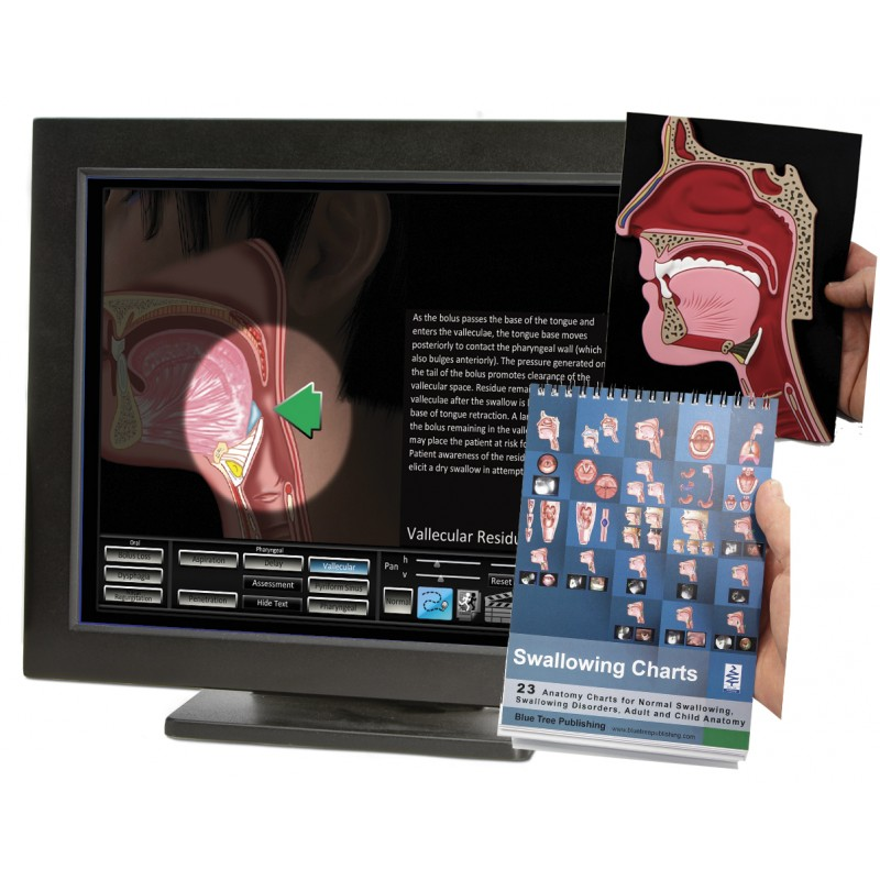 Swallowing Computer Software with Head Model Flip Charts Set