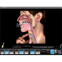 Laryngectomy ID