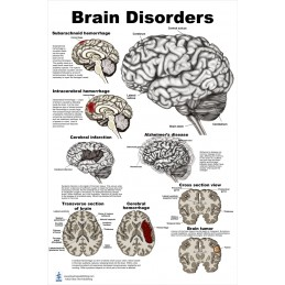 Brain Disorders Large Poster