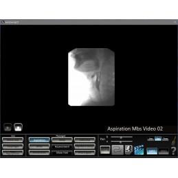 Swallowing App MBS video