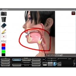 Swallowing App white board