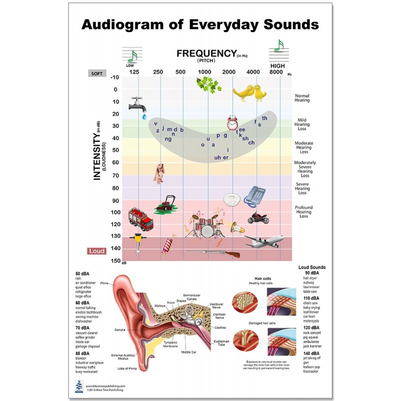 Audiogram Large Poster