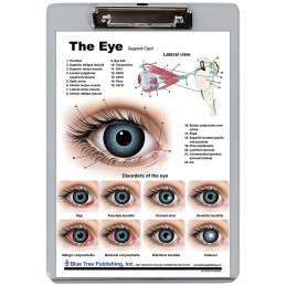 Eye Dry Erase Clipboard back view