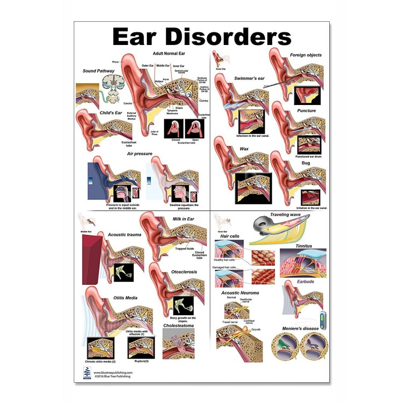 Ear Disorders Large Poster