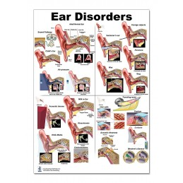 Ear Disorders Regular Poster